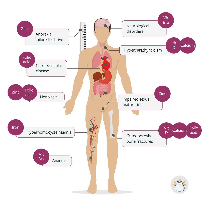 Comorbidities associated with nutrient deficiencies occurring in CD Adapted from: Kreutz JM, et al. 2020