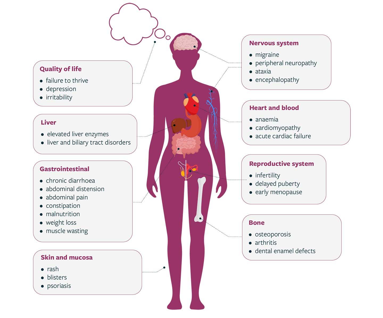 Coeliac Disease wide spectrum of signs and symptoms